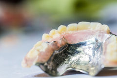 Old partial denture Royalty Free Stock Image