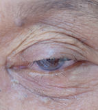 Old people cataract during eye  people asia women 70 years old Stock Photos