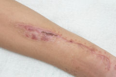 Old scar wound Stock Photos