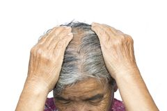 Old woman felt a lot of anxiety about hair loss issue. On white background, scalp problem concept Stock Images