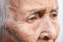 The old woman`s felling lonely.dementia and Alzheimer's disease. The old woman`s stock photography