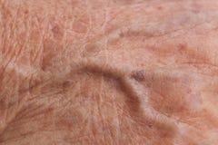 Old woman skin. Blood vessel Stock Image