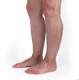 Old woman with varicose veins Royalty Free Stock Photos