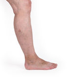 Old woman with varicose veins Royalty Free Stock Image