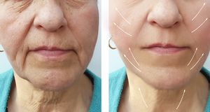 Old woman wrinkles patient before and after filler hydrating the procedure. Old woman wrinkles before and after the procedure arrow hydrating filler patient royalty free stock image