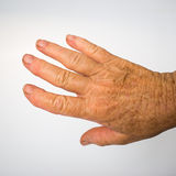 Older lady's hand with arthritis Royalty Free Stock Photography