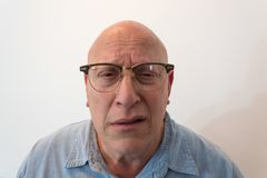 Older man bewildered with horn rimmed glasses, bald, alopecia, chemotherapy, cancer. Isolated on white, vertical aspect Stock Photos