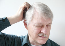 Older man with dry scalp. Senior man scratches his itchy scalp royalty free stock photos
