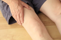 Older man has pain in his thigh stock images