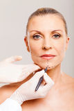 Older woman cosmetic surgery. Older woman with correcting lines before cosmetic surgery Stock Images