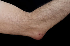 Olecranon bursitis, also known as student's elbow. Is a medical condition caused by the inflammation of the bursa located under the elbow's royalty free stock image