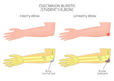 Olecranon bursitis or student's elbow Stock Photo