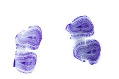 Olfactory bulb of rat. Olfactory bulb, the olfactory organ of rat. light micrograph Stock Image