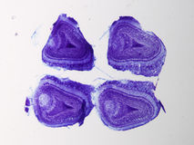 Olfactory bulb of rat. Olfactory bulb, the olfactory organ of rat. light micrograph Stock Images