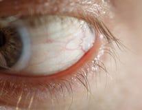 Olho azul do homem com lente de contato foto de stock