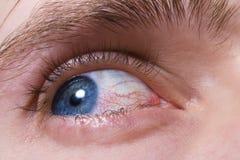 Olho azul dos homens com os vasos sanguíneos vermelhos Imagens de Stock Royalty Free