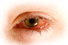 olho doente com conjuntivite Fotos de Stock Royalty Free