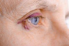 Olho ferido devido à ruptura capilar imagens de stock