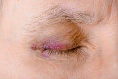 Olho ferido devido à ruptura capilar fotos de stock royalty free