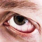 Olho humano capilar do sangue Fotografia de Stock