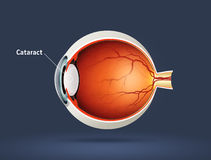 Olho humano - catarata Imagem de Stock