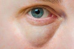 Olho inchado inchado imagem de stock