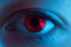 Olho vermelho do sangue fotografia de stock royalty free