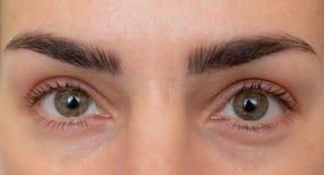 Olhos antes e depois do tratamento da beleza com e sem enrugamentos imagens de stock