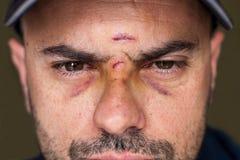 Olhos roxos de um homem ferido Foto de Stock Royalty Free