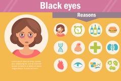Olhos roxos razões Fotografia de Stock Royalty Free