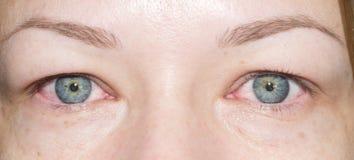 Olhos vermelhos foto de stock