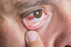 Olhos vermelhos do bloddshot Foto de Stock