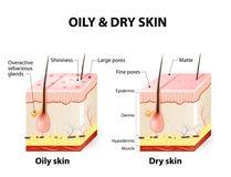 Olieachtige & droge huid stock illustratie