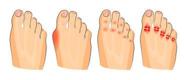 Olik stoppskada inflammation och artrit stock illustrationer