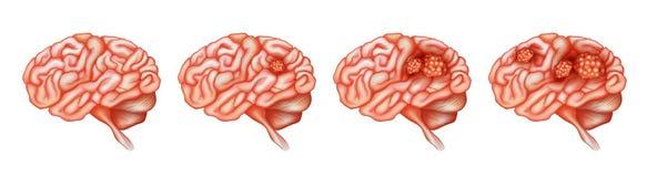 Olika etapper av cancer i hjärna stock illustrationer