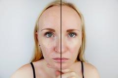 Oljig hud och klar hud Två foto före och efter Stående av en flicka med problemhud arkivbild