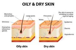 Oljig & torr hud stock illustrationer