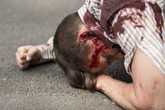 Olycksoffer av terroristattack royaltyfria bilder