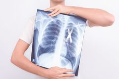 Oncological lung cancer disease concept. Guy male man holding medical lung body x-ray photo with pinned white ribbon as a symbol of lung cancer on white royalty free stock photography
