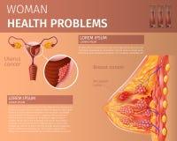 Oncological oordning av det kvinnliga reproduktiva systemet vektor illustrationer