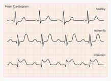 Onde del cardiogramma del cuore Fotografia Stock