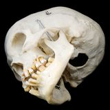 Onderkant van menselijke schedel Royalty-vrije Stock Foto
