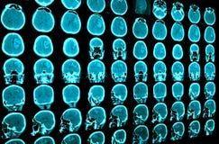 Onderzoek naar geneeskunde. stock fotografie