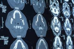 Onderzoek naar geneeskunde CT aftasten van de patiënt Royalty-vrije Stock Foto