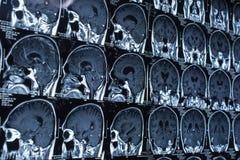 Onderzoek naar geneeskunde CT aftasten van de patiënt Stock Afbeeldingen