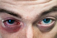 One black eye on man face Royalty Free Stock Photo