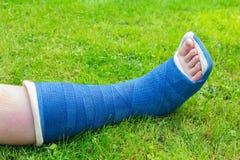 One gypsum leg of boy on grass. One blue gypsum leg of child on green grass Royalty Free Stock Image
