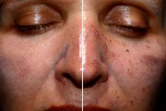 One half of the face in pigmentation and brown spots, the other side of the face after laser polishing and peeling stock photos