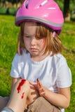 Ongelukkig meisje met haar knie het aftappen stock foto's