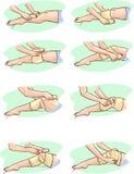 Ongle de pied invétéré illustration de vecteur